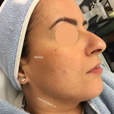 Dermaplaning BEFORE/AFTER photos - Lumilaser Montreal