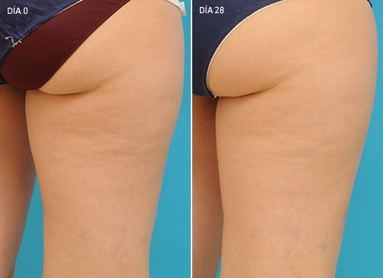 results anti-cellulite cream Montreal, Lumilaser