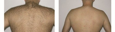 laser hair removal for men man back montreal Lumilaser