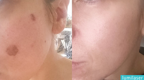 sun spots on face removal in montreal lumilaser