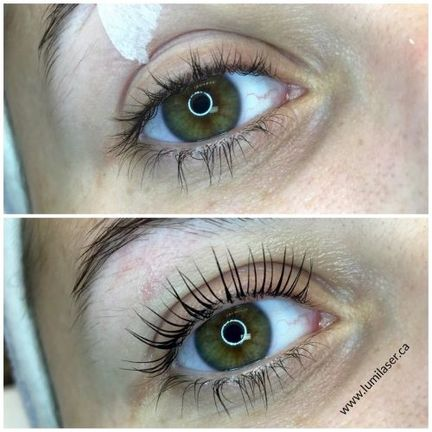 eye lash lift Montreal, Laval, Quebec, Lumilaser