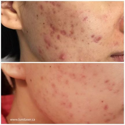 Acne Montreal, Laval, Quebec, Lumilaser